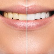 Teeth Whitening at Home Vs. Dentist Office