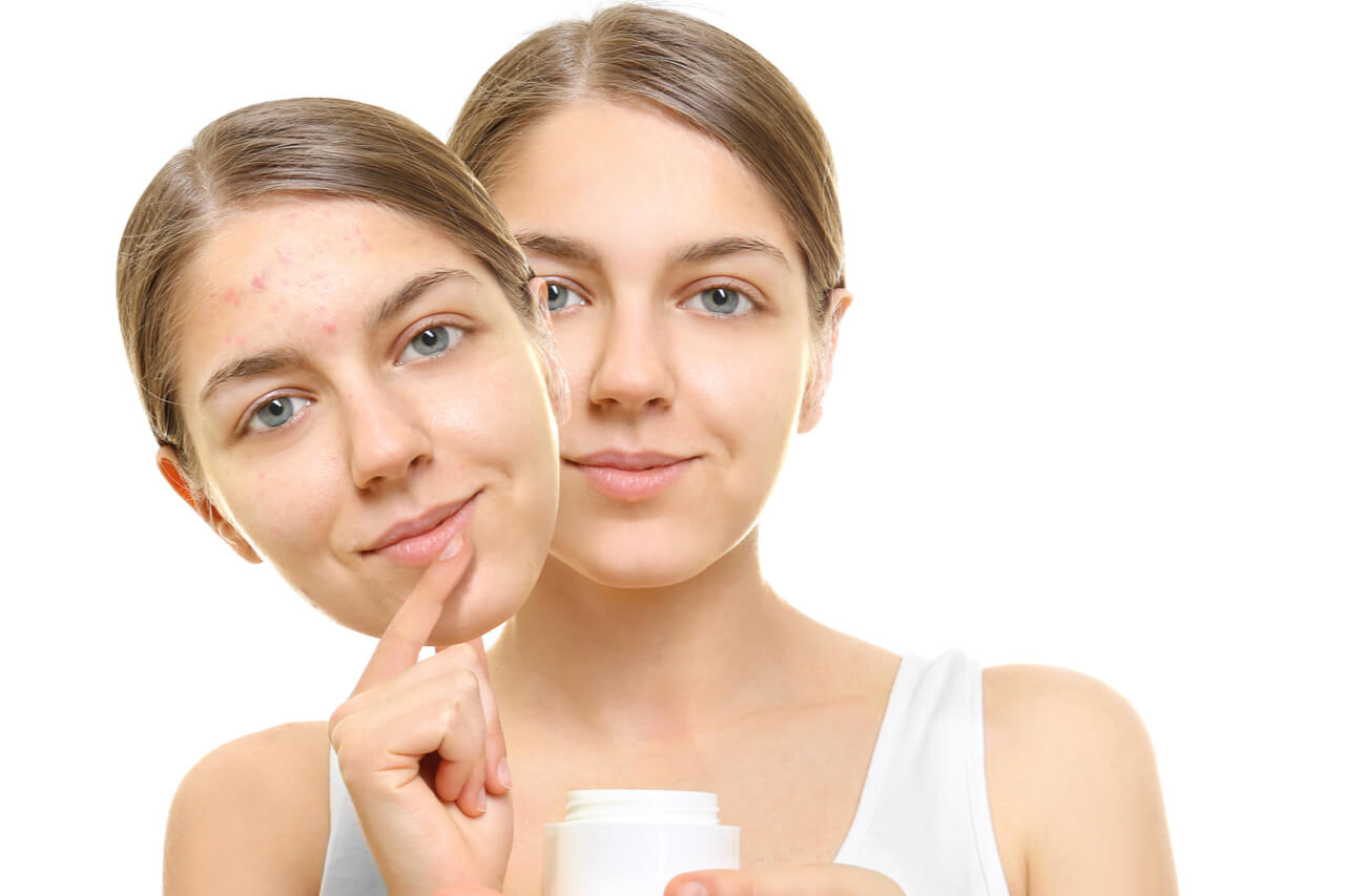 Getting Rid Of Scars: Strataderm Scar Cream, Is It Effective?