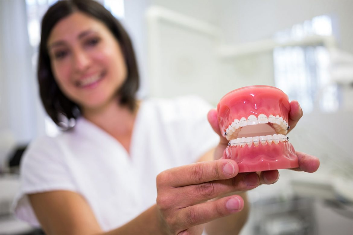 What is Denture Care? (Tips to Clean Your Dentures)